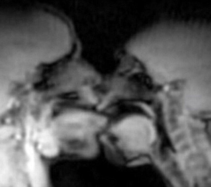 szex, MRI